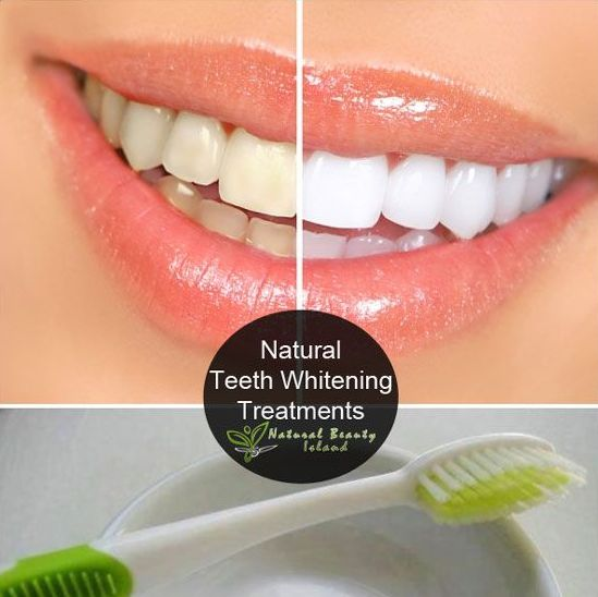 Natural Teeth Whitening from the PND Pinterest Page